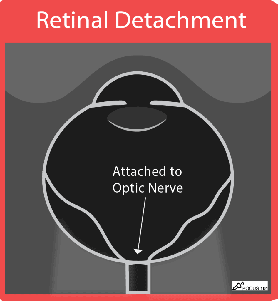 Ocular Ultrasound - Retinal Detachment Illustration - Traumatic POCUS 101