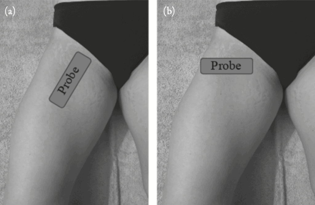 Placement of the transducer to evaluate for hip joint effusion
