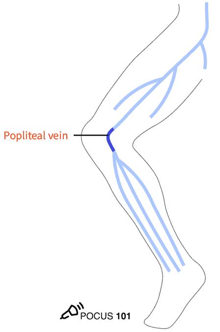 Popliteal Vein DVT Ultrasound Illustration