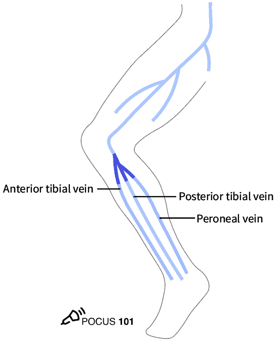 Popliteal Vein Trifurcation DVT Ultrasound Illustration