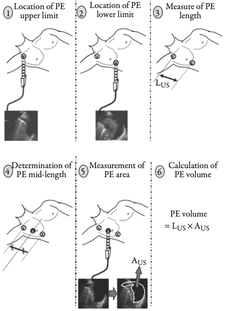 Remerand method for quantifying pleural effusion fluid volume size