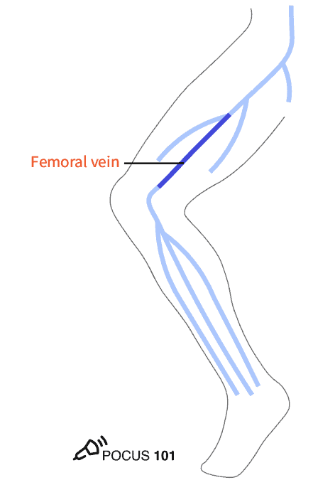 Superficial Femoral Vein DVT Ultrasound Illustration