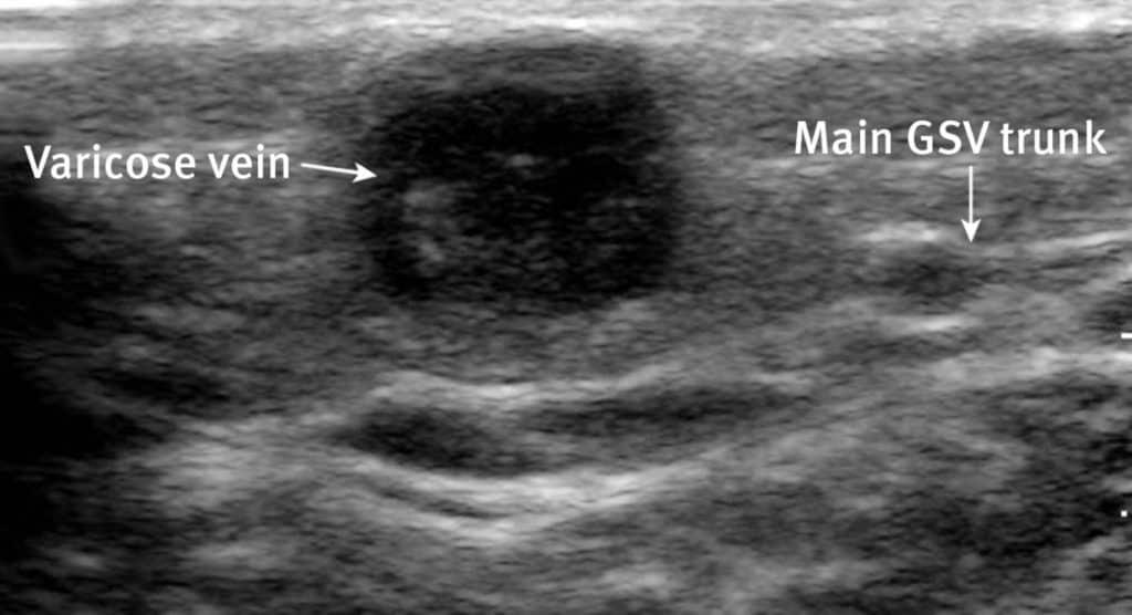 Superficial Thrombophlebitis Ultrasound