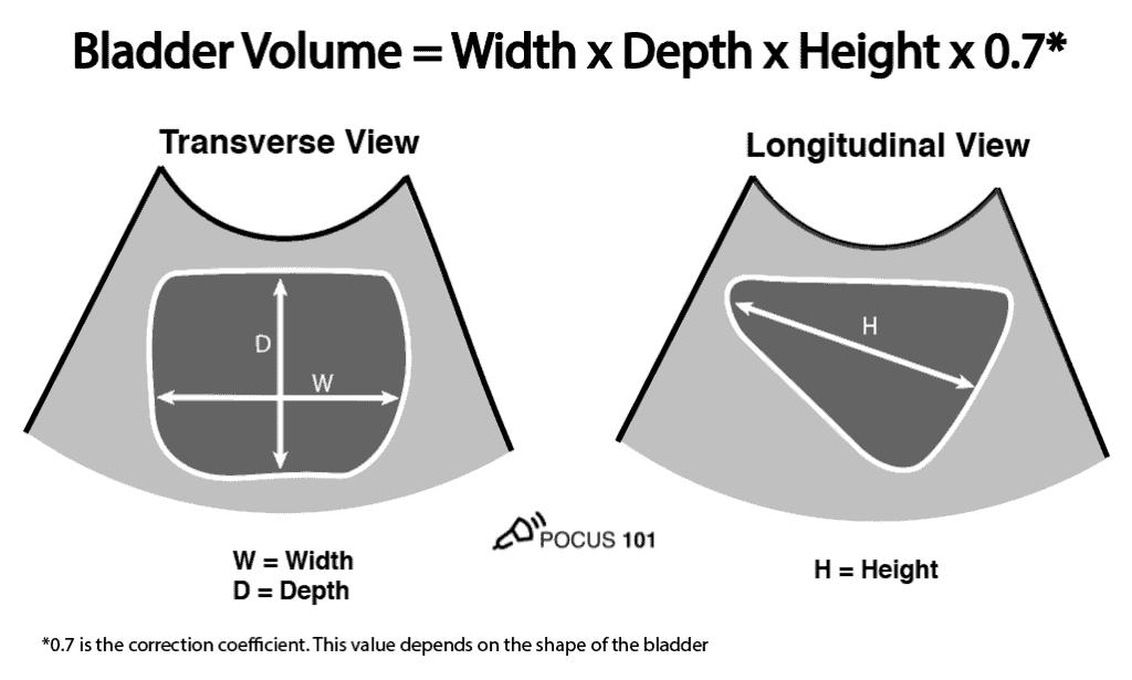 Bladder Volume Ultrasound Calculation Illustration