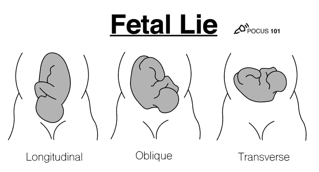 Fetal Lie OB Obstetric Obstetrical Ultrasound Illustration