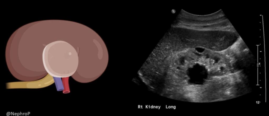 Parapelvic Cyst Renal Ultrasound