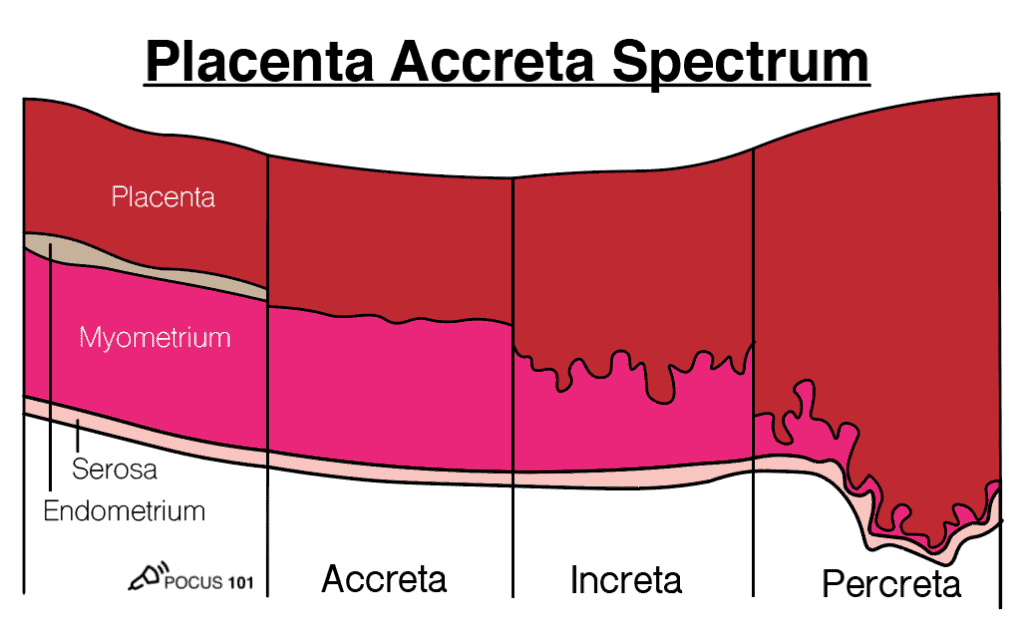 Placenta Accreta Spectrum OB Obstetric Obstetrical Ultrasound Illustration