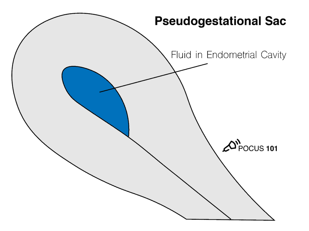 Pseudogestational Sac OB Obstetric Obstetrical Ultrasound Illustration