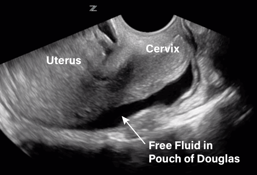 Transvaginal Ultrasound Free Fluid in Pouch of Douglas Sagittal View