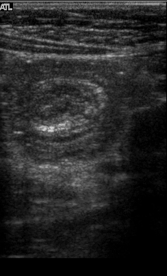 Intussusception abdominal ultrasound target sign