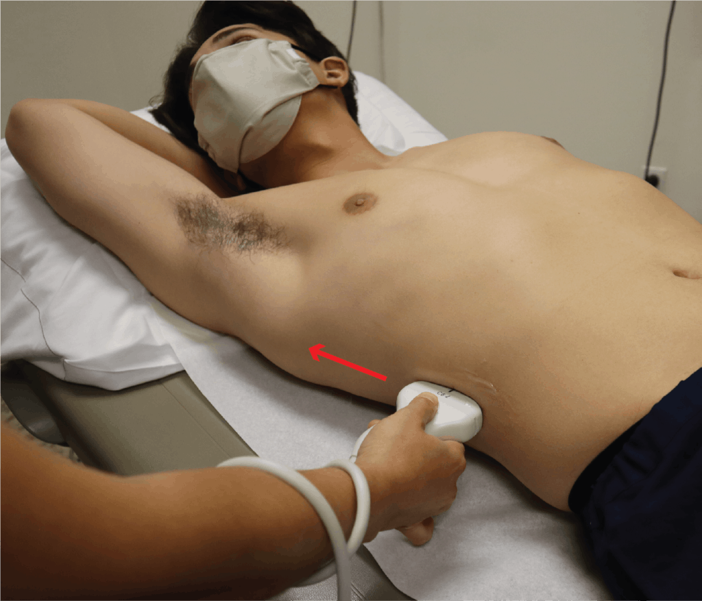 Liver Ultrasound Hand and Probe Positioning