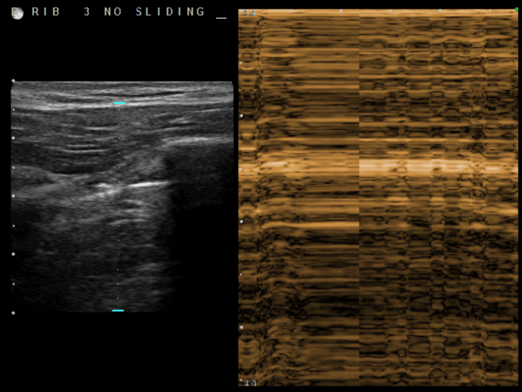 Lung Point - Ultrasound Pneumothorax M-Mode