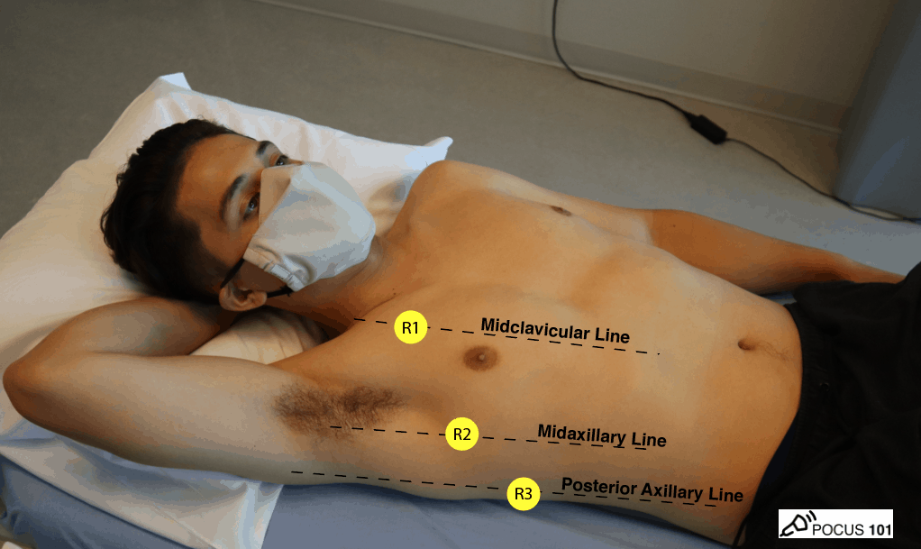 Lung Ultrasound Points