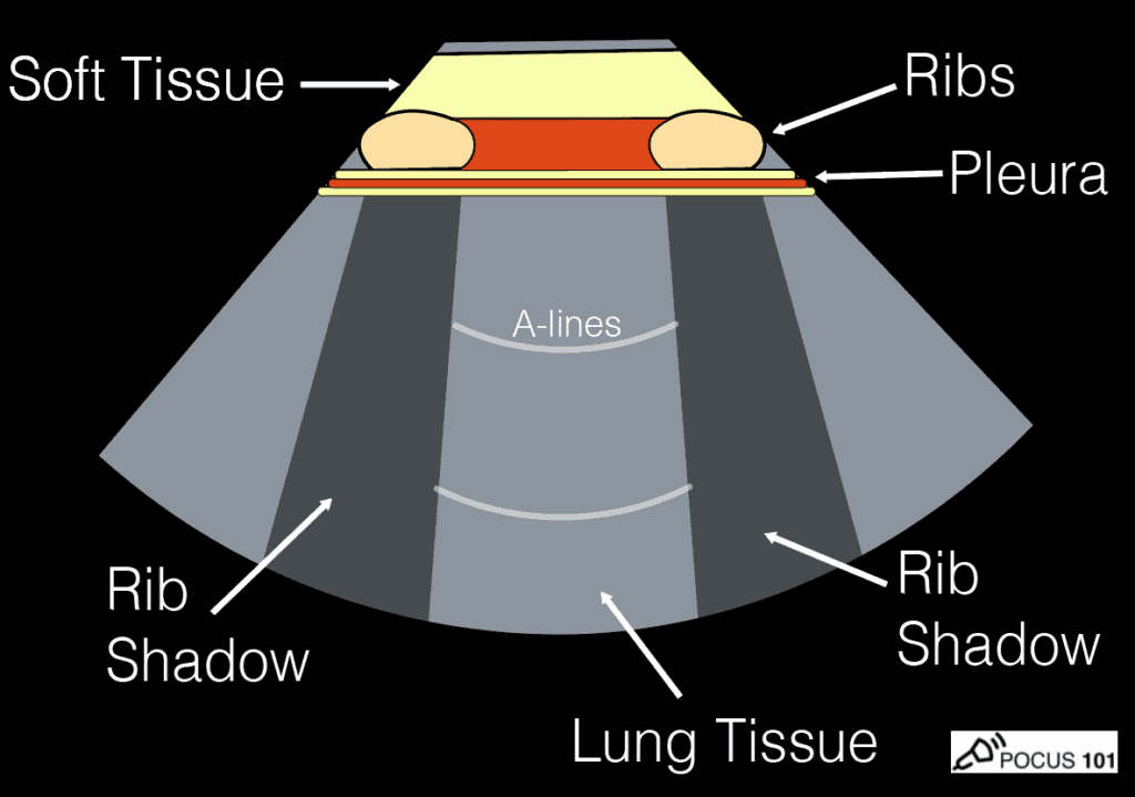 Lung Ultrasound Rib shadows - Batwing Sign Illustration