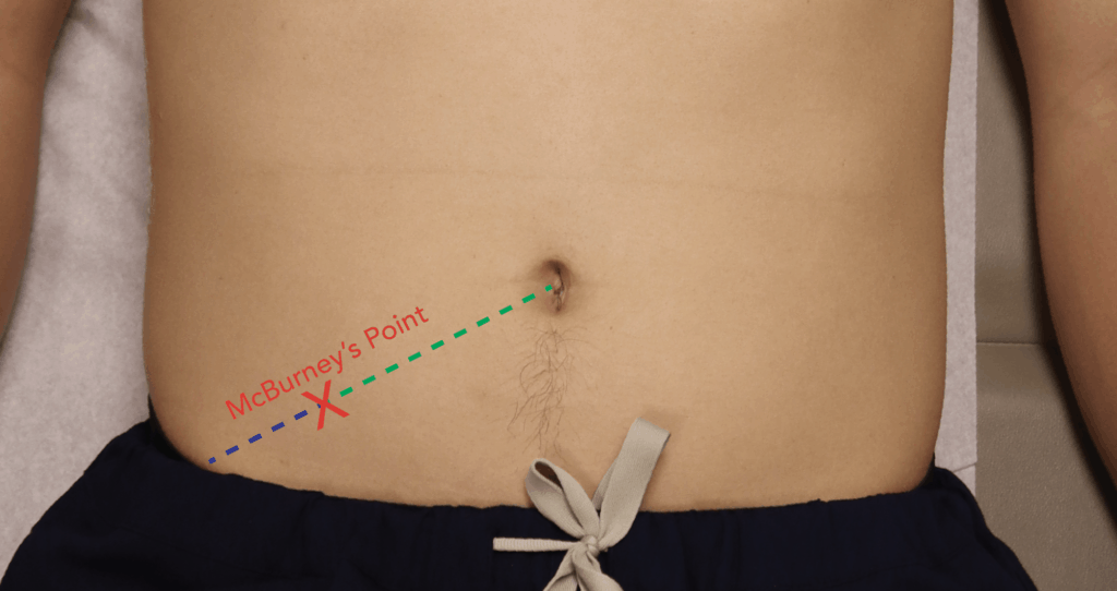 McBurney's Point - Appendicitis Appendix