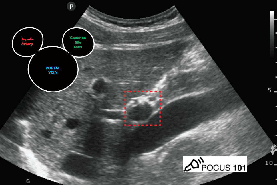 Portal Triad - Mickey Mouse Sign, Portal Vein, CBD, Hepatic Artery - Hepatobiliary Ultrasound
