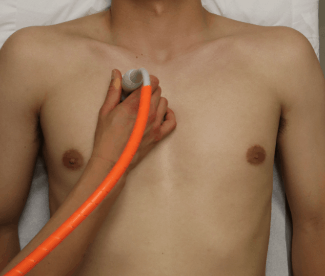 R1 Point - Lung Ultrasound Midclavicular Line