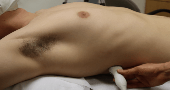 R3 Point - Lung Ultrasound Posterior Axillary Line