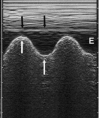 Sinusoid Sign on Lung Ultrasound