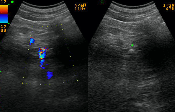 Twinkle Artifact Gallstone Ultrasound