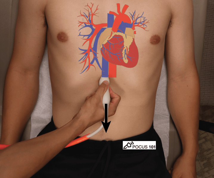 Cardiac Ultrasound Echocardiography IVC View Inferior Vena Cava Hand Position