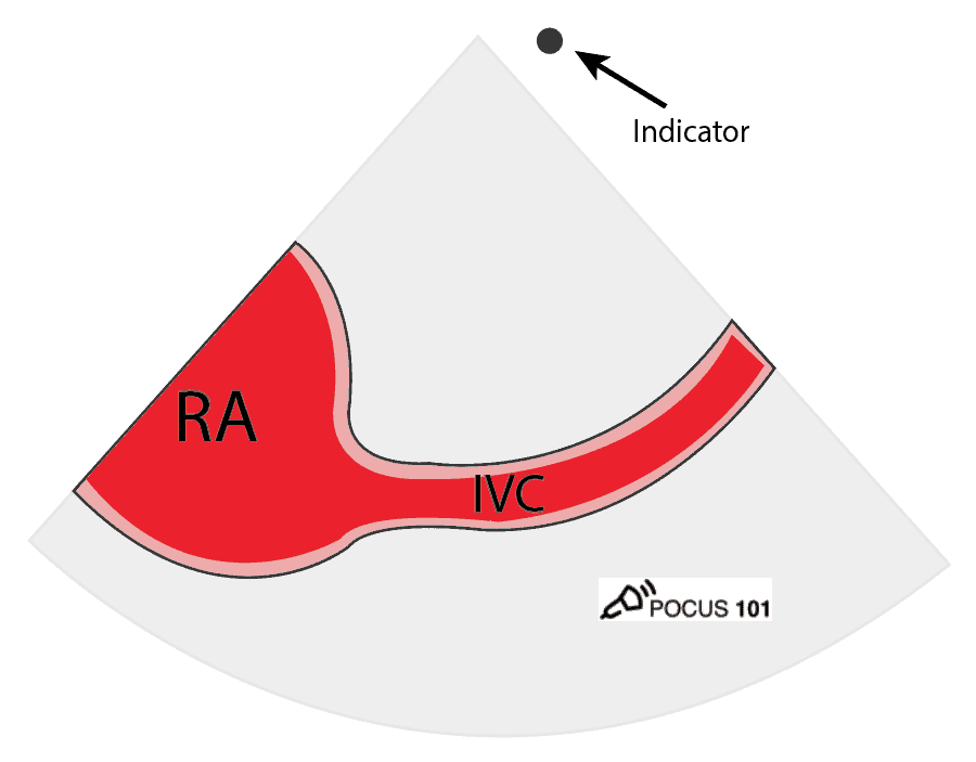 Cardiac Ultrasound Echocardiography Inferior vena cava IVC View Illustration POCUS