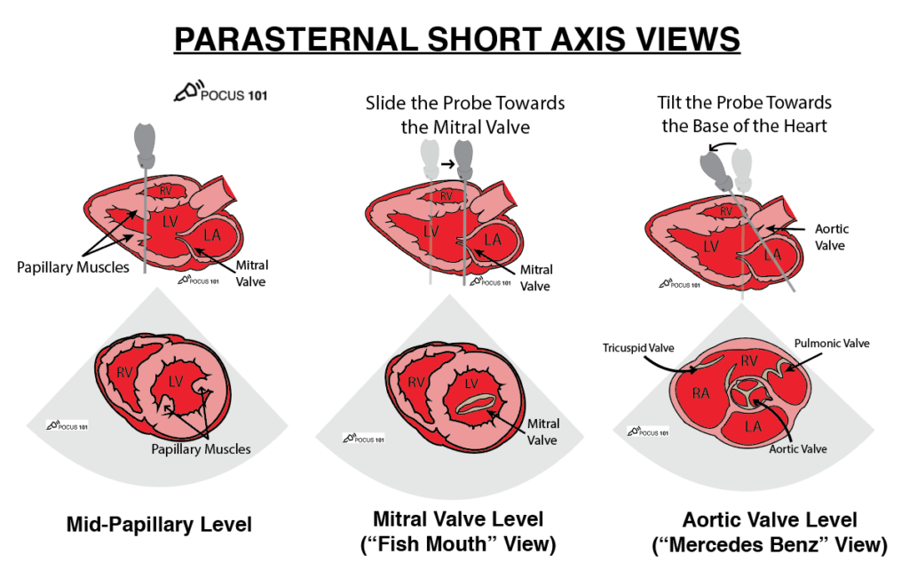 Cardiac Ultrasound Echocardiography Parasternal Short Axis Protocol for all the Views POCUS