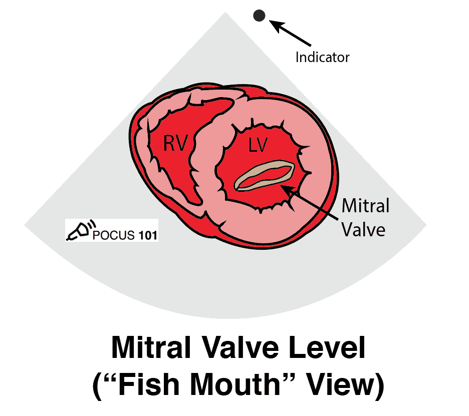 Cardiac Ultrasound Echocardiography Parasternal Short Axis View PSSA PSAX Mitral Valve Fish Mouth Illustration