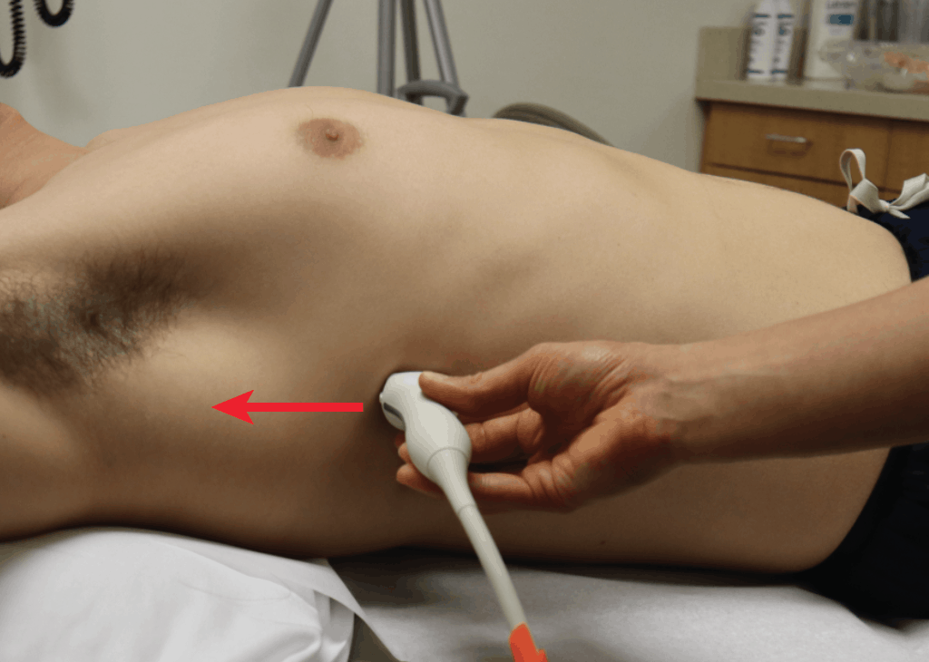 RUQ Hand Position Lateral View eFAST FAST Ultrasound Exam