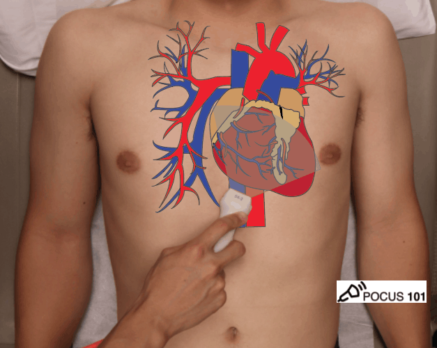 eFAST FAST Subxiphoid Cardiac Ultraosund Anatomy Probe Position Illustration Echocardiography