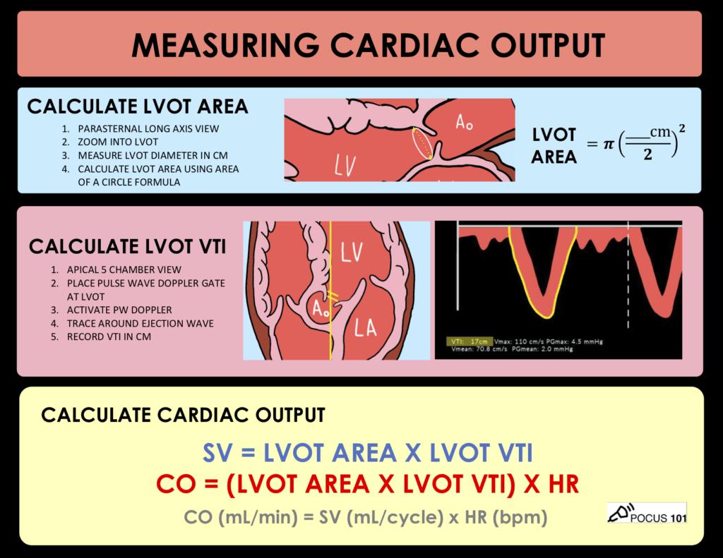 Cardiac Output Stroke Volume Ultrasound Echocardiography Handout PDF
