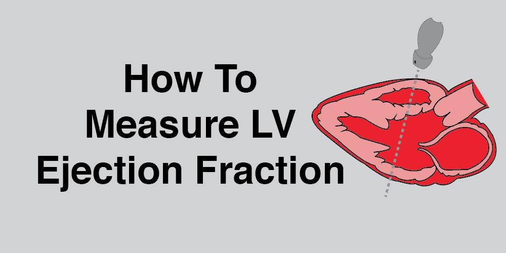 LV ejection fraction EF systolic function cardiac ultrasound echocardiography POCUS qualitative quantitative