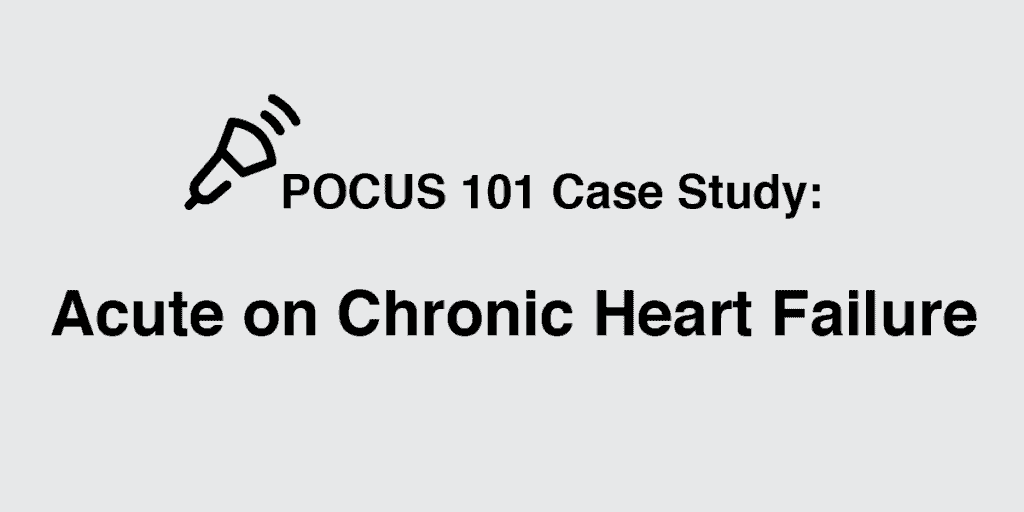 Acute on Chronic Heart Failure Ultrasound Case Study Featured Image POCUS